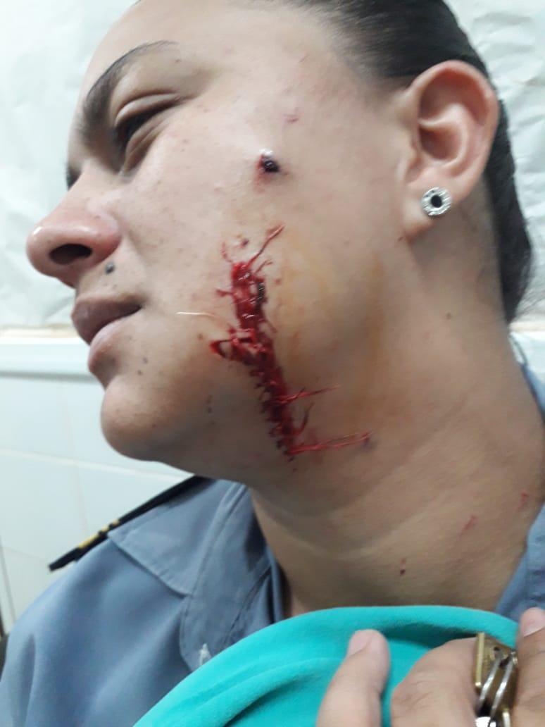 POLICIA HERIDA EN VIRASORO.jpg